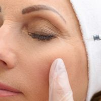 The Things to Avoid When You Have Done Botox
